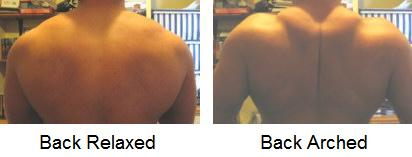 Upper Back Relaxed, Upper Back Arched